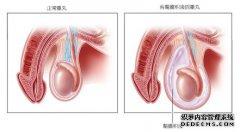 腹腔镜微创术 轻松解决鞘膜积液