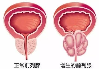 男士遇到前列腺增生的原因