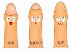 男科解答:男性割包皮包茎最佳年纪是多大